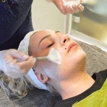 sh_beauty_yoannas skin peel 1