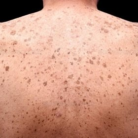 Dermatology Expert North London, Shine Newington Green