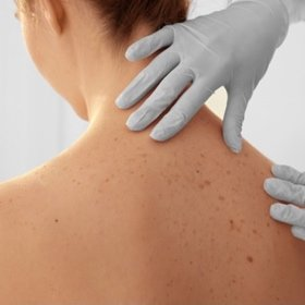 SH Health Skin exam