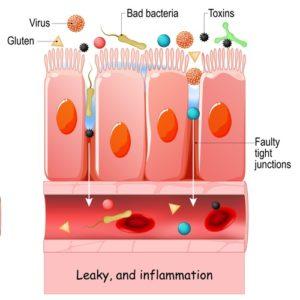 SH Leaky gut