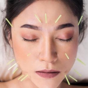Cosmetic Acapuncture